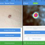 写真から悪性ホクロを見分けてくれる、メラノーマ検出アプリ「SkinVision」